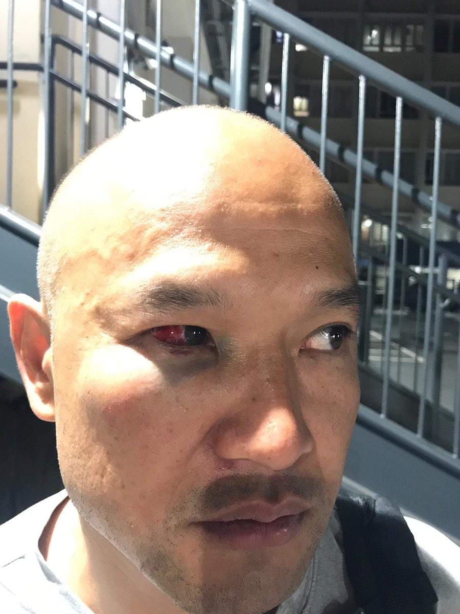 警察被激光笔照伤了眼睛.jpg